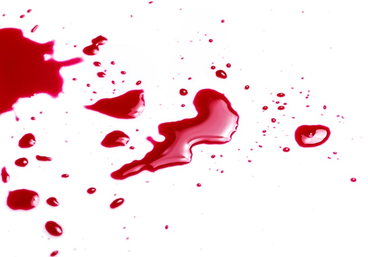 Чим відіпрати кров з одягу в домашніх умовах