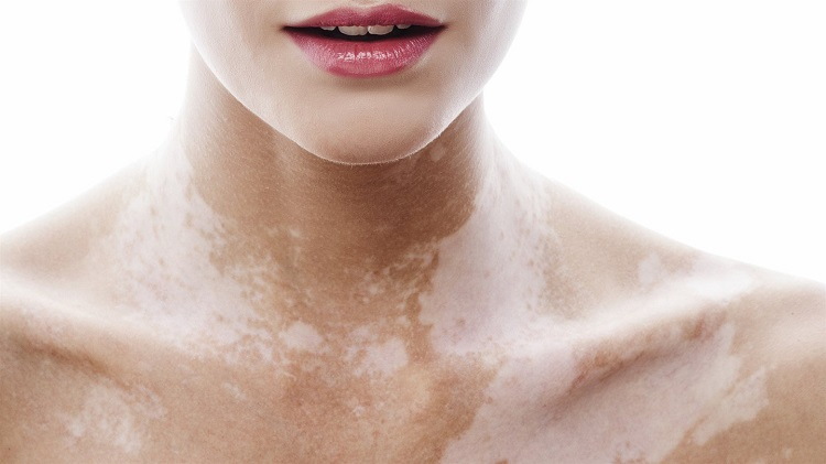 Чому після засмаги на шкірі з'являються білі плями