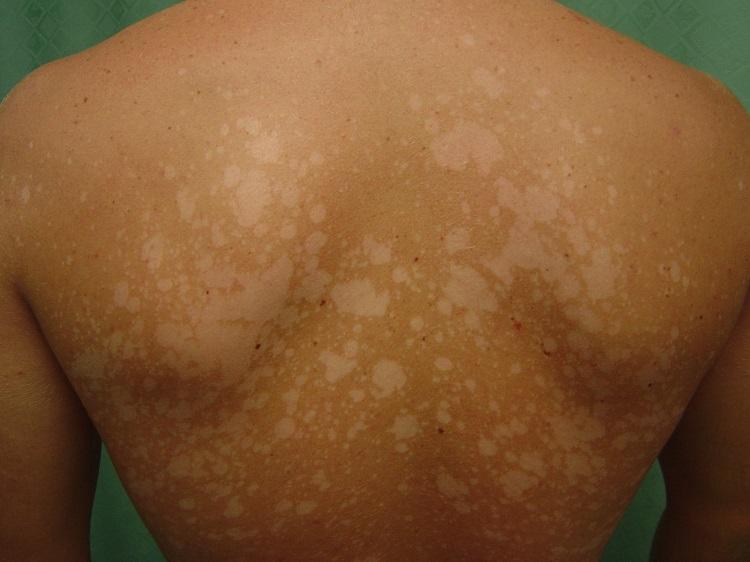 пігмінтація шкіри після засмаги
